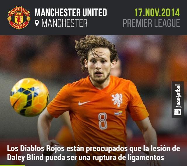 Manchester United están al pendiente del posible alcance de la lesión de Daley Blind