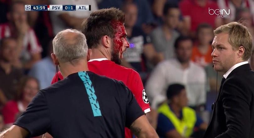 Pröpper terminó sangrado