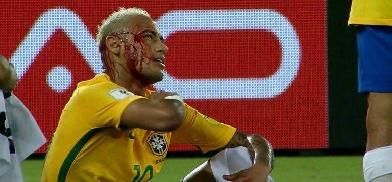 Neymar fue golpeado en el partido frente a Bolivia, por lo que terminó ensangrentado su participación en el juego.
