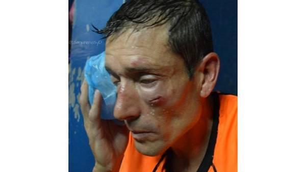 El árbitro fue agredido y así quedó su rostro
