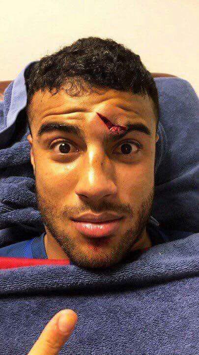 Rafinha mostró su herida luego del accidente con Ter Stegen durante el Barcelona vs. Athletic