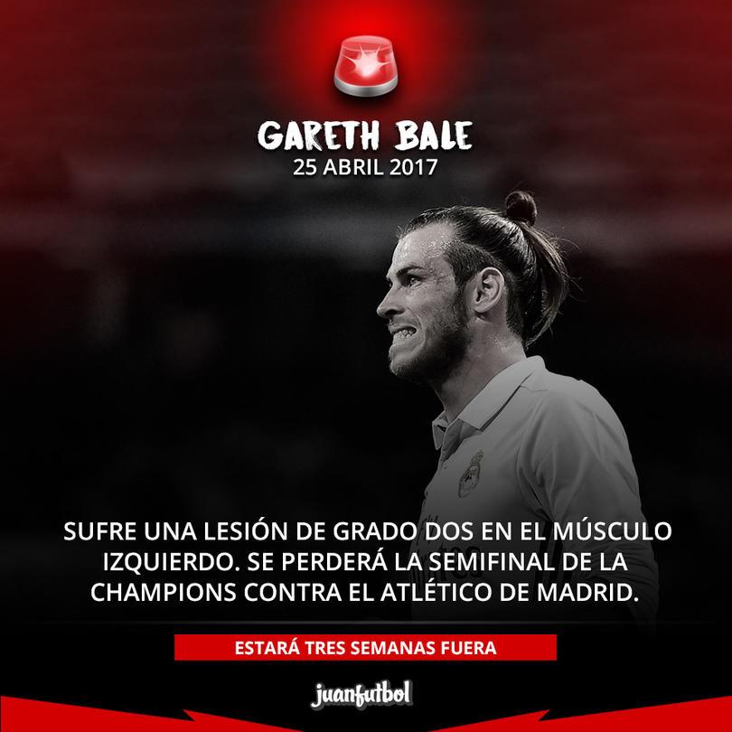 Bale se lesionó en el Clásico