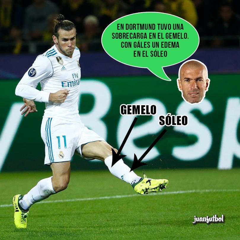 Así son las recientes lesiones de Zidane