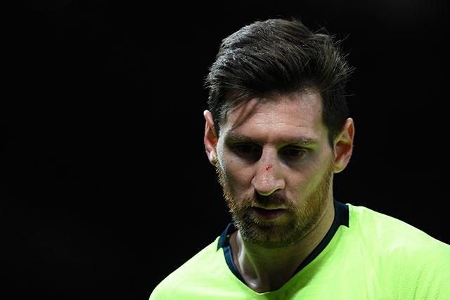 Messi recibió un golpe en el rostro que lo dejaría fuera del partido contra Huesca
